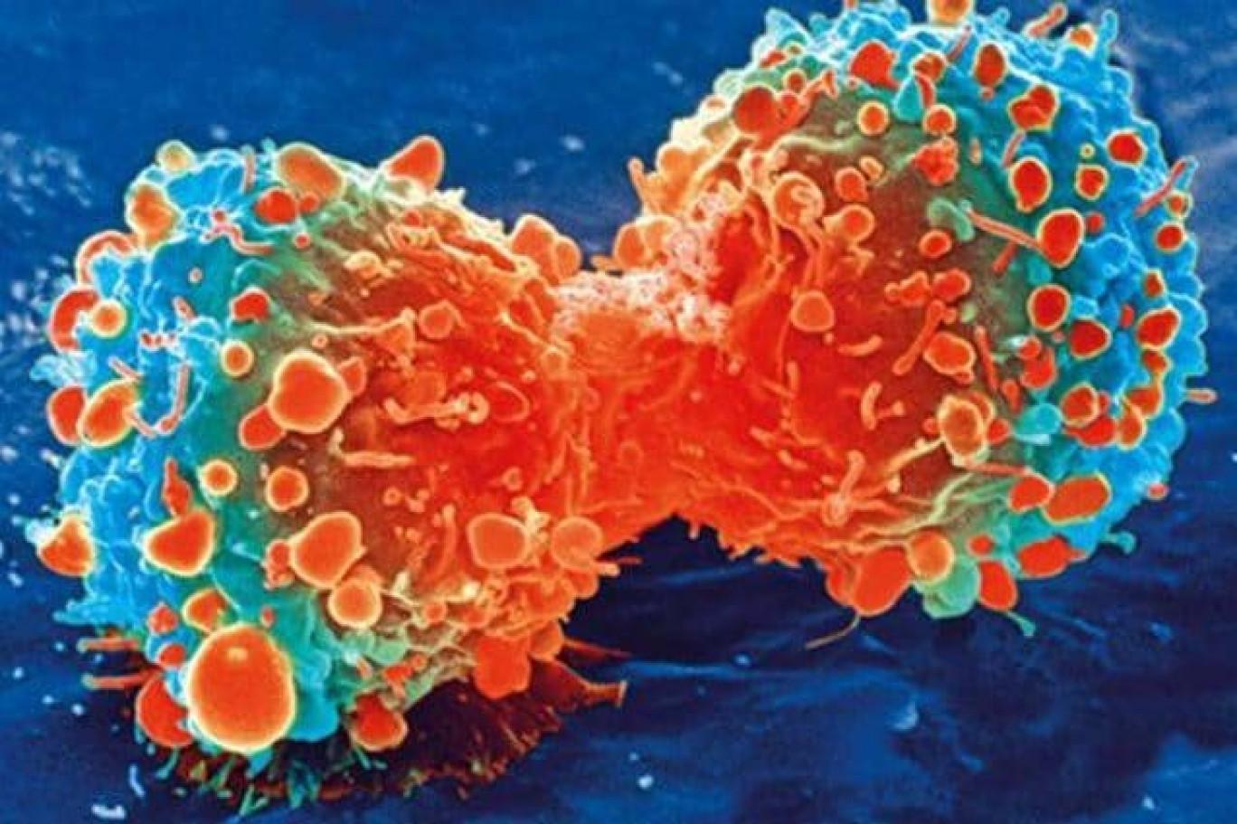 Farmaco sperimentale blocca i tumori al polmone e al colon